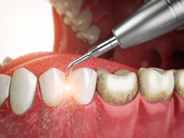 Комплексная чиста зубов air flow